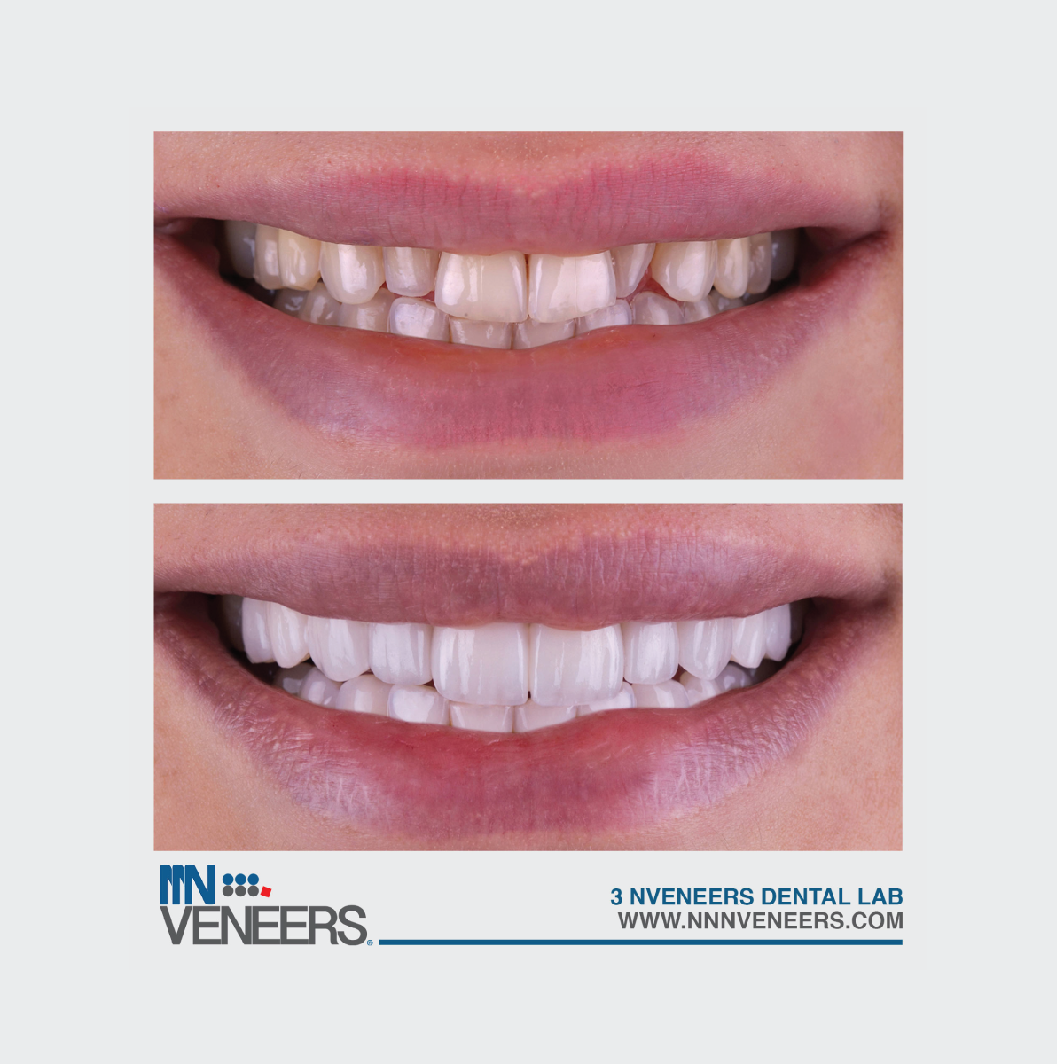Benefits of NNN VENEERS : 1