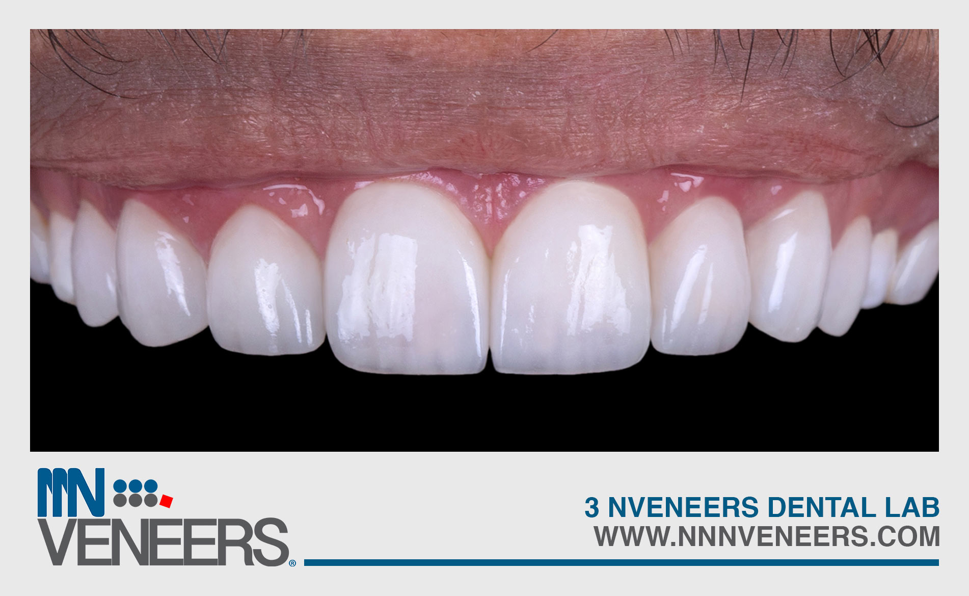 man teeth closeup after nnnveneers dentist