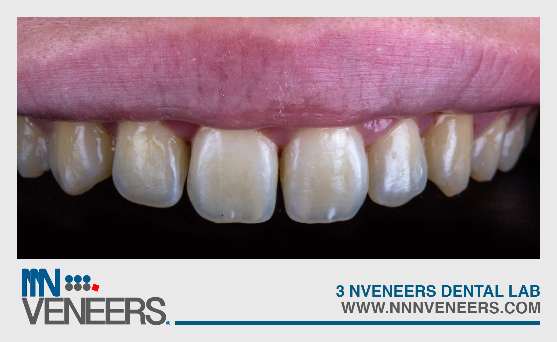 image gallery teeth 11 before NNN VENEERS