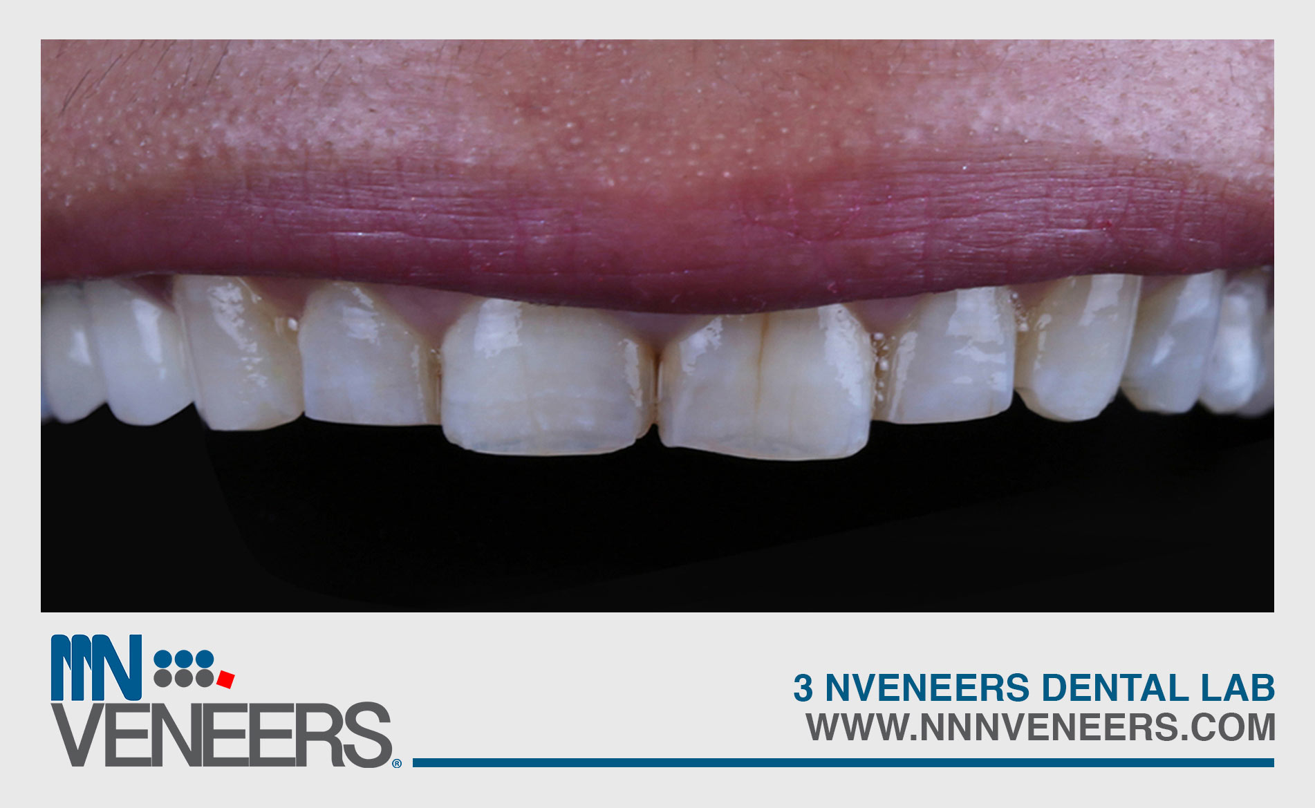 image gallery teeth 4 before nnn veneer
