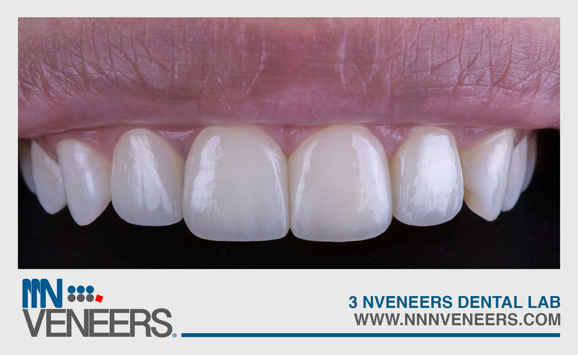 NNNVeneer Teeth Image Gallery Close Up 1 After